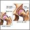 Artritis en la cadera