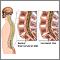 Microdiscectomía - Serie