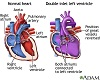 Doble entrada ventricular izquierda