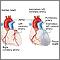 Arteria coronaria izquierda anómala