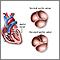 Válvula aórtica bicúspide