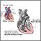 Miocarditis