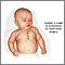 Cirugía a corazón abierto en un bebé