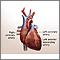Cirugía de derivación cardíaca - Serie