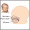Cirugía de labio y paladar hendido - Serie