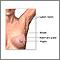 Mastectomía - Serie