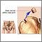 Médula ósea de la cadera