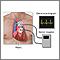 Monitoreo cardíaco Holter