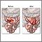 Antes y después de anastomosis del intestino delgado