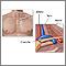 Anatomía de la salida del tórax