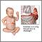 Hernia diafragmática infantil