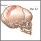 Fractura de cráneo en lactante