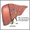 Bilis producida en el hígado
