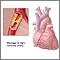 Obstrucción de las arterias coronarias