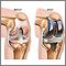 Prótesis de reemplazo de la articulación de la rodilla