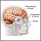 Hernia cerebral