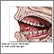 Úlceras de la boca