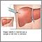 Cultivo de tejido hepático