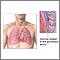 Émbolo pulmonar