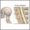 Espondilosis cervical