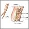 Daño del nervio cubital